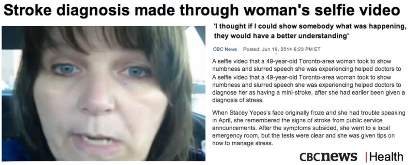 Stroke diagnosis made through womans selfie video